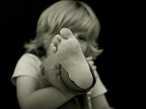 Criança pode ter chulé?