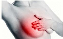 Mastite: Sintomas e Tratamento