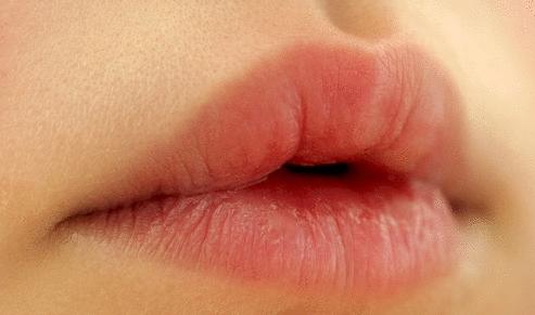 Lábio Leporino e Fenda Palatina