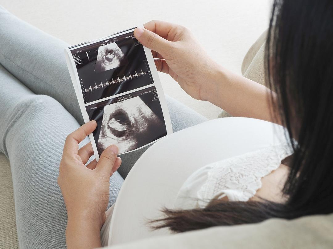 Tipos de ultrassom