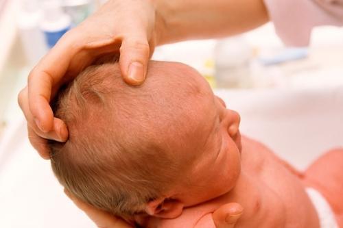 Entenda a moleira do bebê, o que é e como cuidar